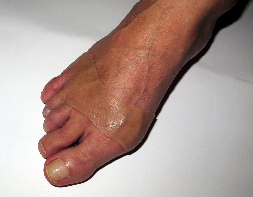 Toe prothesis