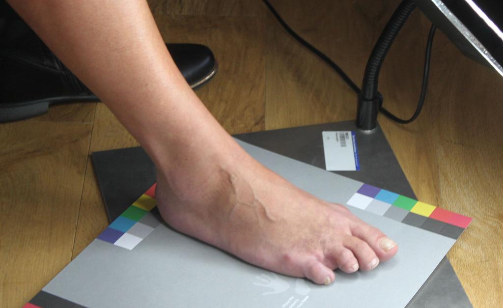 Silicone Prosthetic Toe